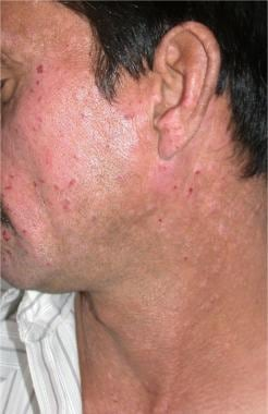 Multiple itchy papules coalescing into plaques on