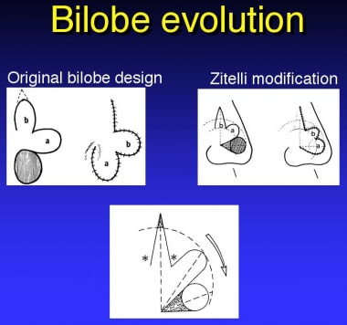 Bilobed flap evolution.