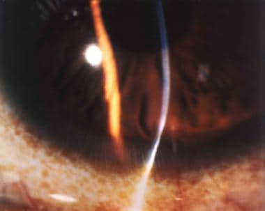Slit lamp image of the inferior cornea in a patien