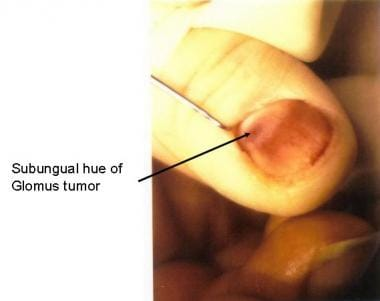 Subungual hue seen with a superficial glomus tumor