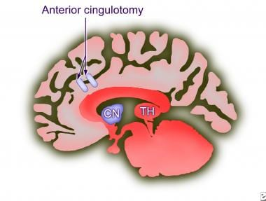 Cingulotomy. The position of the lesion is shown.
