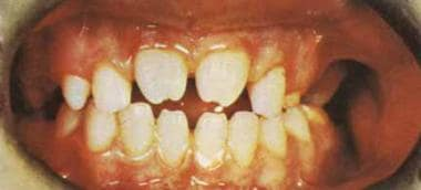Syphilis. This photograph shows an example of Hutc