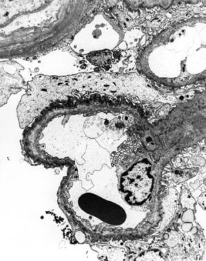 Electron micrograph from a patient with Alport syn