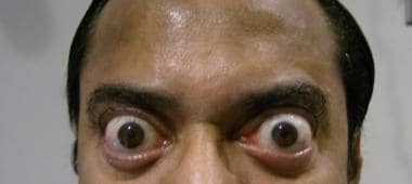 Exophthalmos due to thyroid dysfunction. The patie
