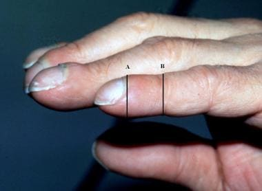 Clubbing, phalangeal depth ratio. Photograph shows
