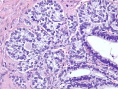 Gynandroblastoma shows a granulosa cell with well-