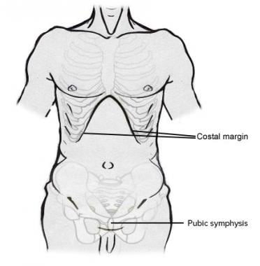 Abdominal Closure: Background, Indications and