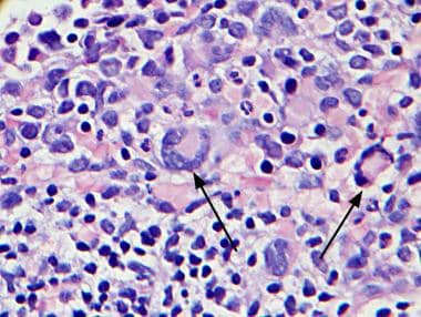 Bone marrow section, hematoxylin and eosin. Note m