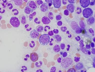 Erythroid hyperplasia and cytoplasmic vacuolizatio