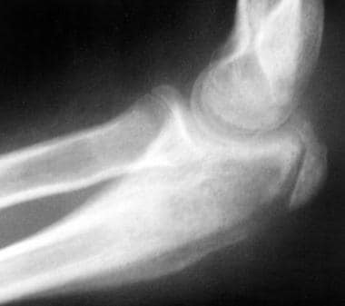 Coccidioidal osteomyelitis of the right elbow. Pla