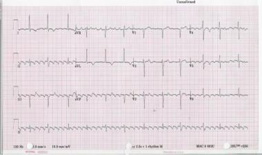 Twelve-lead ECG of type I atrial flutter. Note neg