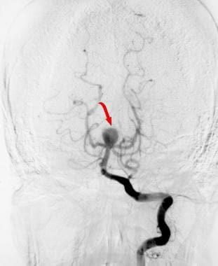 Cerebral aneurysm - Emergency neuroradiology. Cere