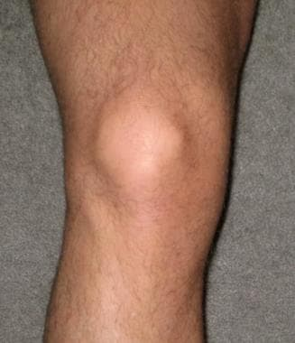 Anterior view of right knee.