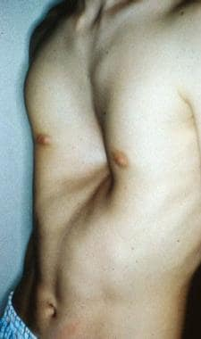 A 16-year-old boy with severe pectus excavatum. No