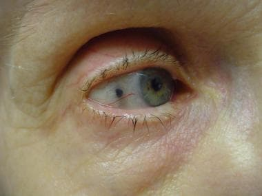 Minocycline pigmentation of the sclera.
