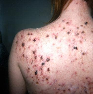Nodules and pustules on the back. Courtesy of Eman
