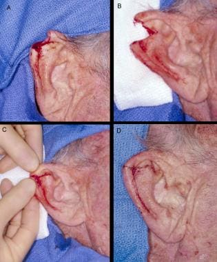 Wedge excision repair. Panel A: Defect after cance