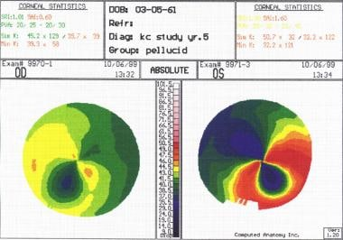 Corneal topography of early (right eye) and modera