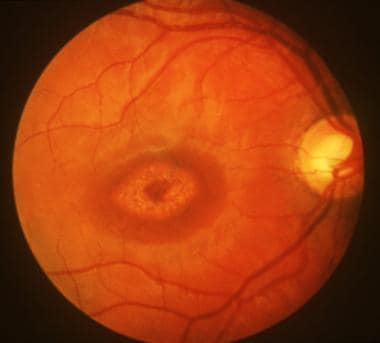 Bull's eye maculopathy seen in cone dystrophy.