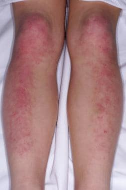 An erythematous, violaceous, scaly rash is present