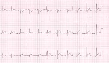 Stage 1 electrocardiograph changes in a patient wi