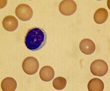 Peripheral smear showing classic spherocytes with