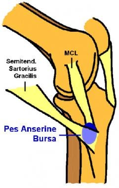 Location of pes anserinus bursa on medial knee. MC
