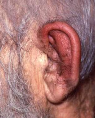 Auricular edema and erythema sparing the lobule. C
