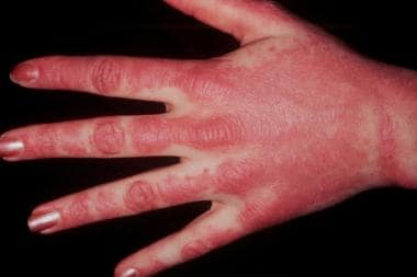 These lesions on dorsal hands demonstrate photodis