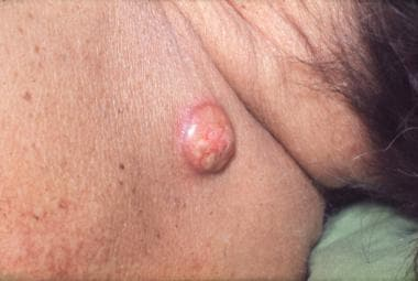 Lung cancer, skin metastasis. Photograph shows a s