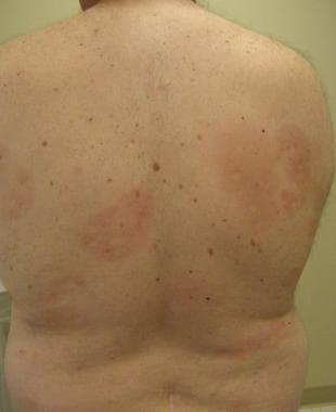 pityriasis lichenoides chronica behandling