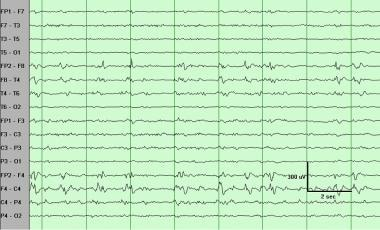 Periodic lateralized epileptiform discharges (PLED
