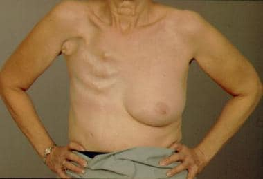Radical mastectomy defect.