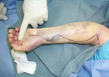 Compartment syndrome of the forearm of an anticoag