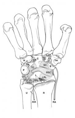 Volar carpal ligaments and bones. AIA = anterior i