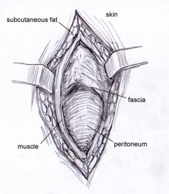 Layers of abdomen, from interior to exterior: peri