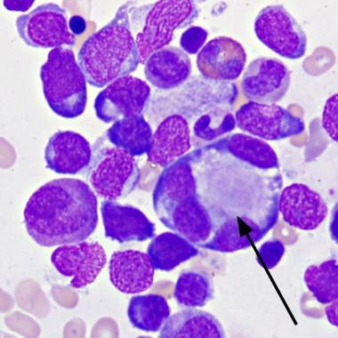 Bone marrow aspirate, Wright-Giemsa. Note megakary