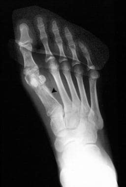 Radiograph of the foot (same patient as in the pre