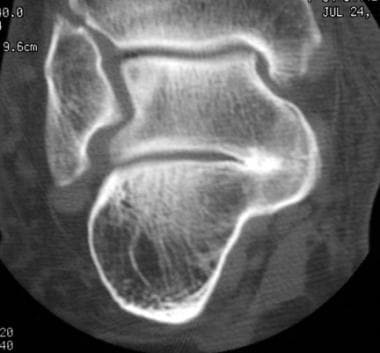 Tarsal Coalition Imaging: Overview, Radiography, Computed Tomography
