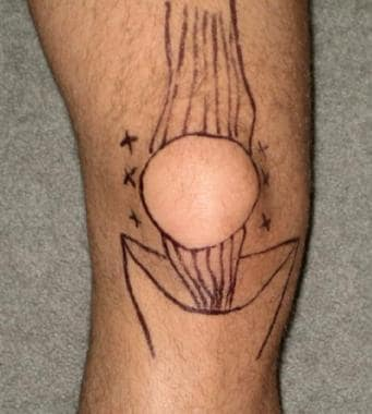 Anatomic landmarks for knee arthrocentesis.