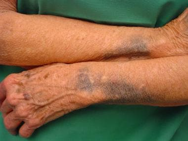 Minocycline pigmentation of the forearms.