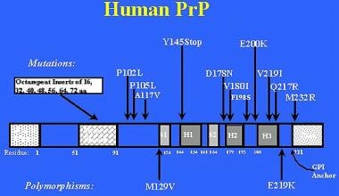 Prion-related diseases. A representation of the hu