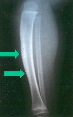 Cortical thickening of the tibia adjacent to an in