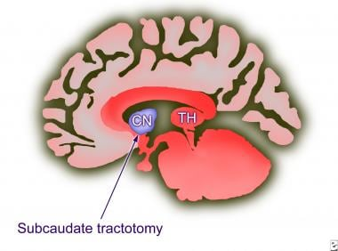 Subcaudate tractotomy. The position of the lesion