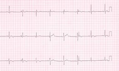 Stage 4 electrocardiograph changes in the same pat