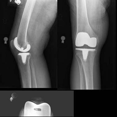 Patellofemoral arthritis. This patient had severe