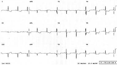 Electrocardiogram of a patient presenting to the E