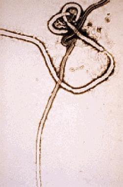 Ebola virus. Courtesy of the US Centers for Diseas