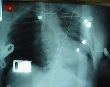 This chest radiograph has 2 abnormalities: (1) ten