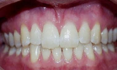 Healthy mouth and gingiva. Note the healthy light
